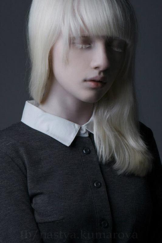 albino-model0006